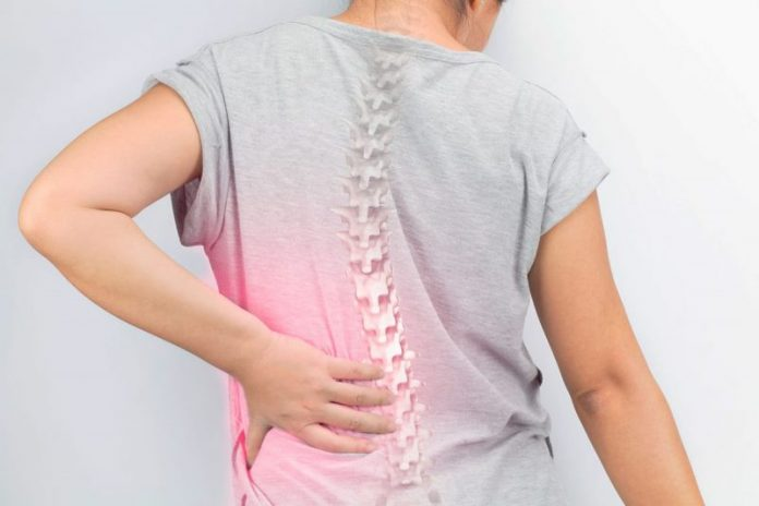 Vertebroplastia – O que é? – Osteoporose