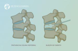 Vertebroplastia