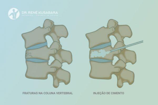 O que é Vertebroplastia? – Tratamento da Osteoporose