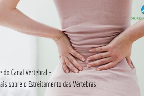 Estenose do Canal Vertebral – Saiba Mais sobre o Estreitamento das Vértebras