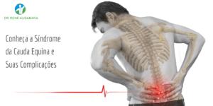 Conheça a Síndrome da Cauda Equina e Suas Complicações