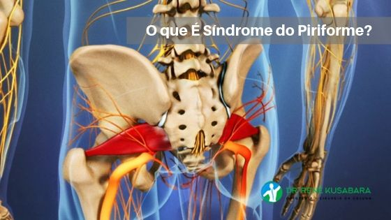 O que É Síndrome do Piriforme?