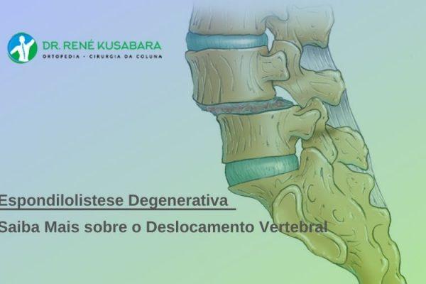 Espondilolistese Degenerativa – Saiba Mais sobre o Deslocamento Vertebral