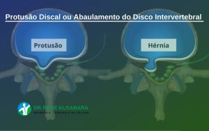Protusão Discal