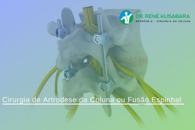 Cirurgia de Artrodese da Coluna ou Fusão Espinhal