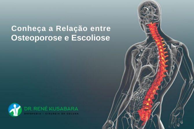 Conheça a Relação entre Osteoporose e Escoliose