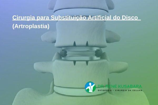 Cirurgia para Substituição Artificial do Disco (Artroplastia)