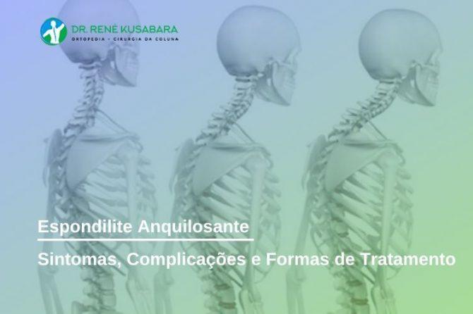 Espondilite Anquilosante – Sintomas, Complicações e Formas de Tratamento