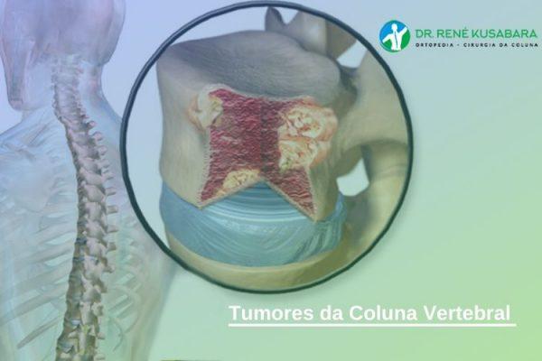 Tumores da Coluna Vertebral – Sintomas e Tratamento