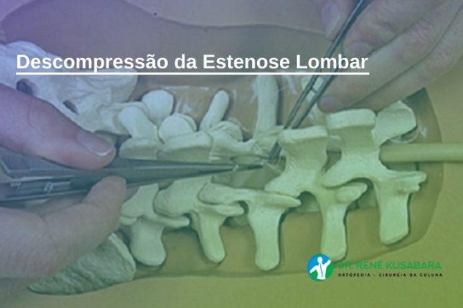 Descompressão da Estenose Lombar