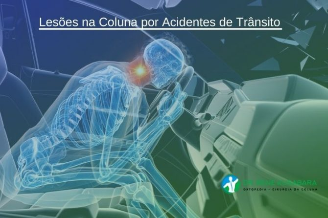 Lesões na Coluna por Acidentes de Trânsito
