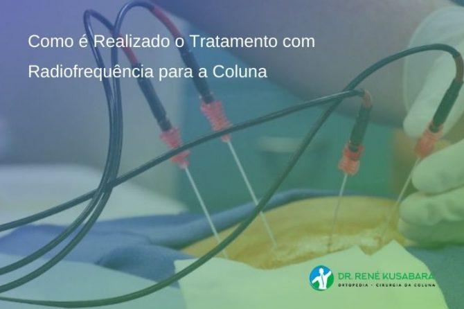 Como é Realizado o Tratamento com Radiofrequência para a Coluna