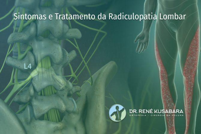 Sintomas e Tratamento da Radiculopatia Lombar