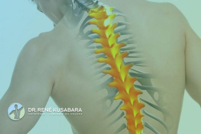 Hérnia de Disco Torácica – Causas, Sintomas, Tratamento