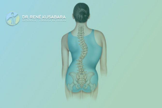 Escoliose Neuromuscular – Sintomas e Tratamento