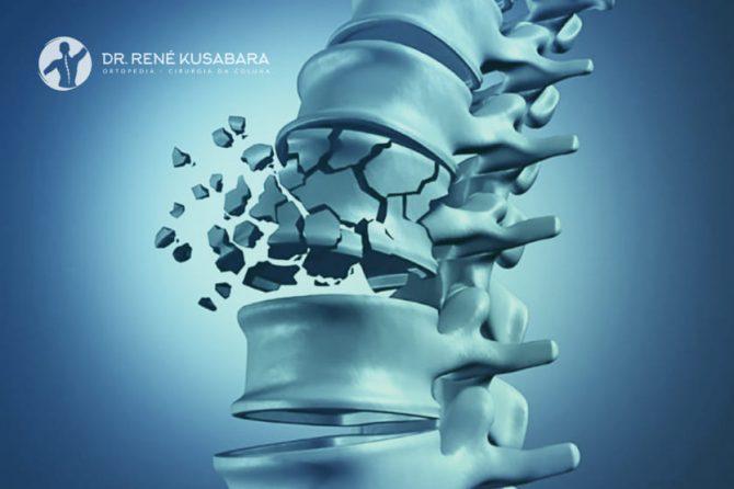 Como Tratar Fratura na Vértebra