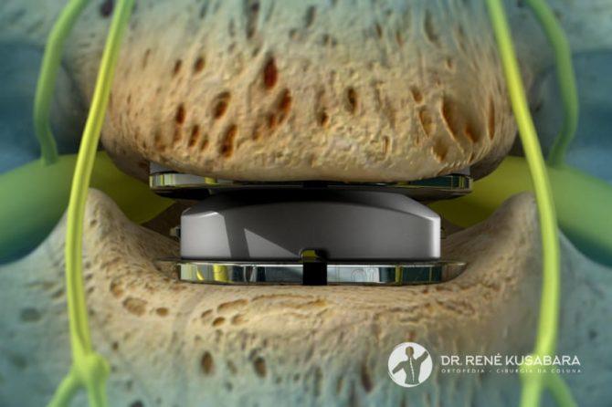 Artroplastia do Disco Cervical – Conheça a Técnica Cirúrgica
