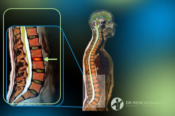 Osteomielite Vertebral – Sintomas, Diagnóstico, Tratamento